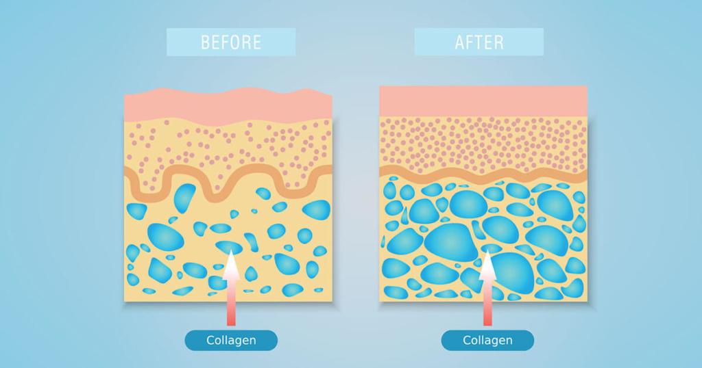 "<img src=""Efekti kolagena.jpg"" alt=""Slika pre i posle korišćenja kolagena""/>"